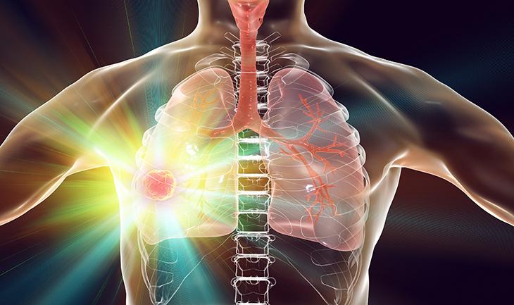 cancer et régime cétogène